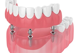 Diagram of implant dentures in Columbus
